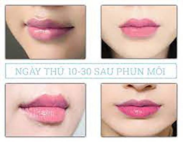 Ngày thứ 10 đến ngày thứ 30 sau phun môi.
