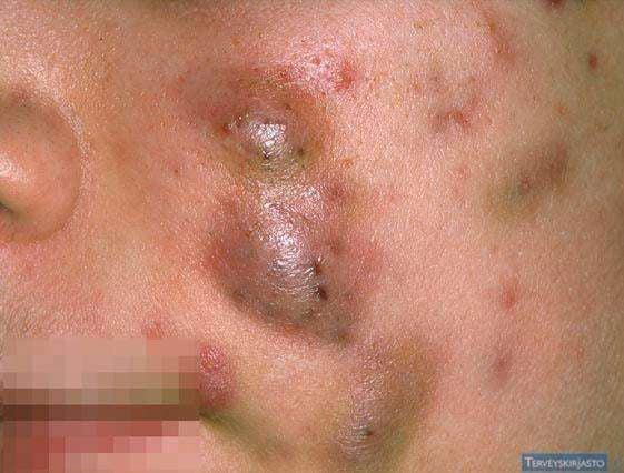 Mụn bọc cực kì dễ để lại sẹo rỗ và có khả năng phá hủy, làm đứt gãy collagen, elastin vĩnh viễn.