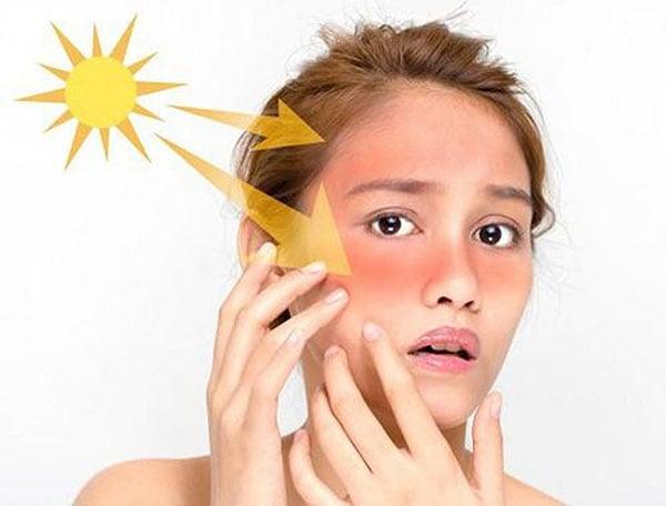 Tiếp xúc với ánh sáng mặt trời nhiều cũng có thể gây nám da