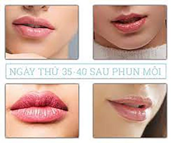 Ngày thứ 35 đến ngày thứ 40 sau phun môi