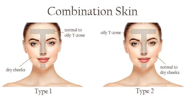 Bạn thuộc tuýp da hỗn hợp (combination skin)