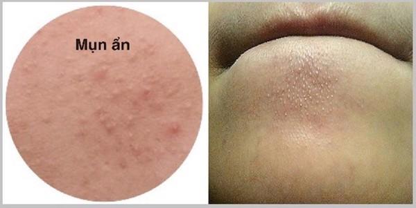 mụn ẩn quanh miệng do mất cân bằng nội tiết tố