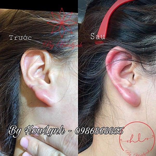 tiêm tai tài lộc trước và sau tiêm