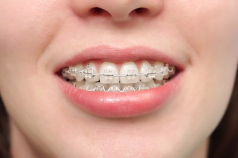 how long does it take to wear braces