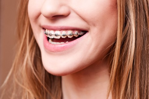 how much do braces cost at nhan tam dental clinic