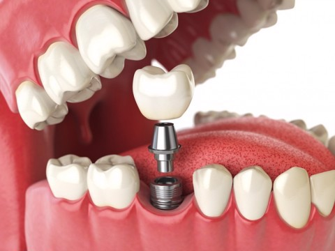 dental implant cost at nhan tam dental clinic