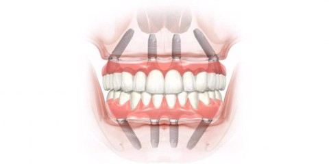 all on 4 implant the golden choice for teeth loss patients