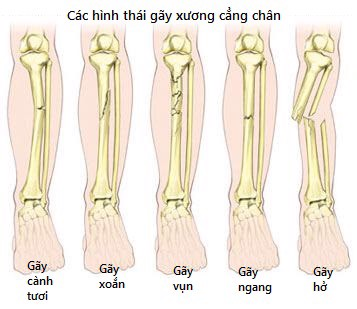 cac-hinh-thai-gay-xuong-chay-tre-em-wellbeing