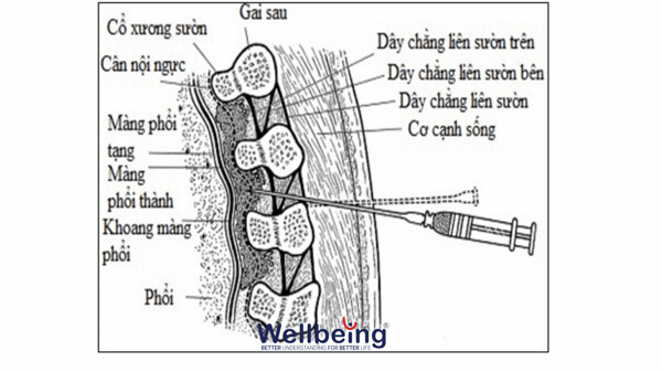chan-thuong-nguc-wellbeing