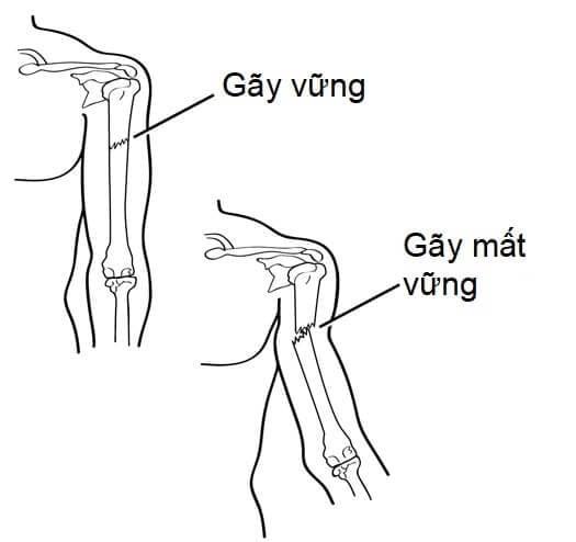 wellbeing-gay-xuong