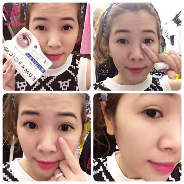Cách sử dụng kem trị thâm quầng mắt Kumargic Eye
