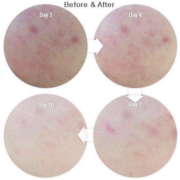 hiệu quả sau khi sử dụng tinh chất dưỡng trắng trị thâm serum cc melano