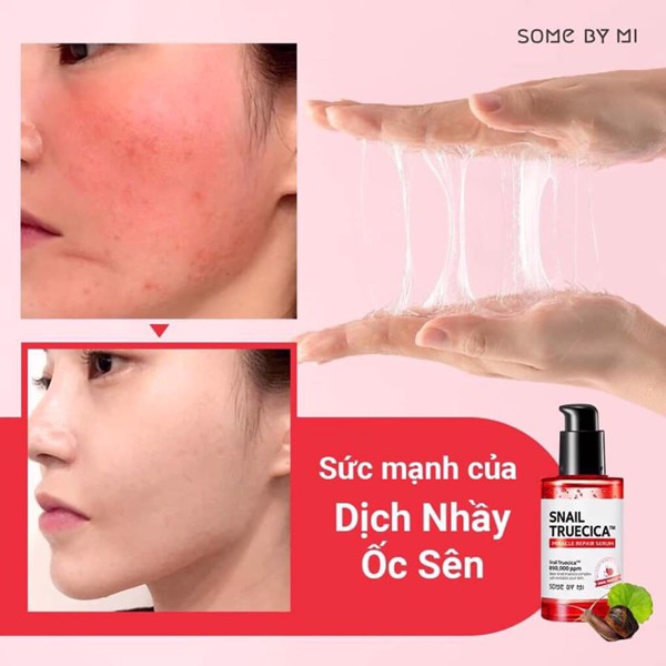 Tinh chất ốc sên Some By Mi Snail Truecica Miracle Repair Serum