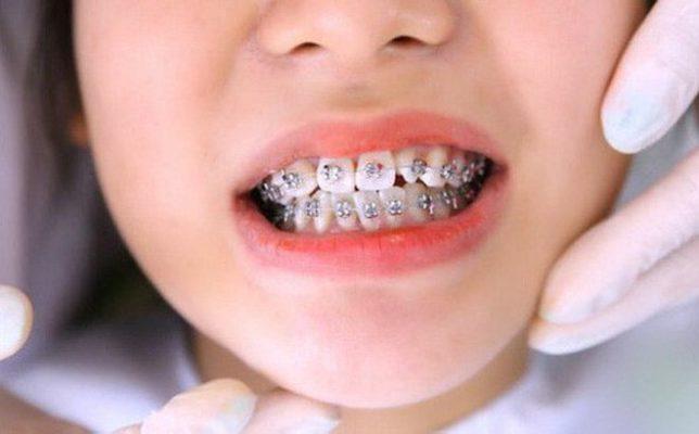 Niềng răng có gây lệch mặt?