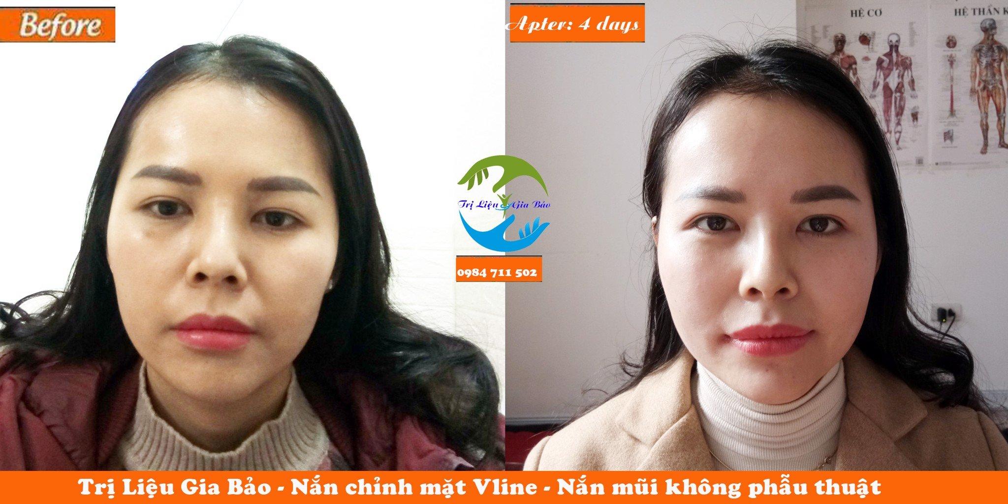 Nắn chỉnh mặt Vline, chỉnh lệch hàm, chỉnh lệch mũi ms Phương anh