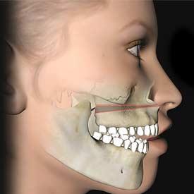 Hiệu quả Chỉnh lệch mặt không phẫu thuật Gia Bảo được bao lâu