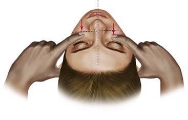 trị liệu nắn chỉnh xương mặt