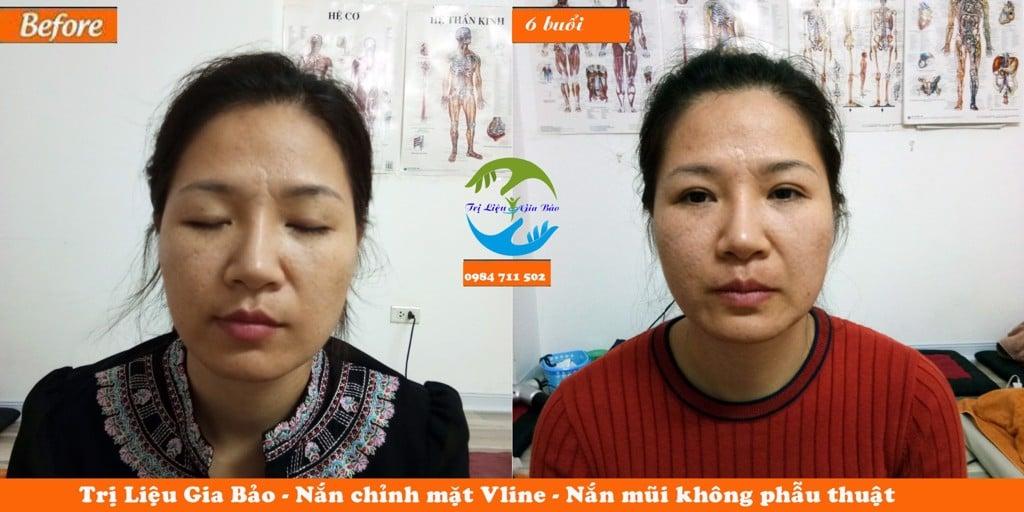 Nắn chỉnh mặt vline, chỉnh lệch hàm, nắn mũi không phẫu thuật