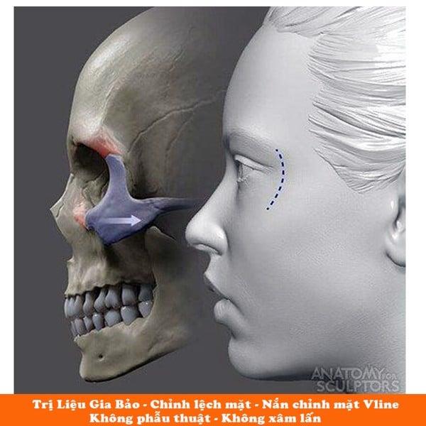 chỉnh lệch mặt không phẫu thuật