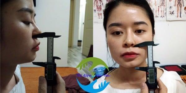 nắn chỉnh mặt vline, nắn chỉnh mũi cao tự nhiên không phẫu thuật