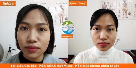 Hiệu quả nắn chỉnh mặt Vline tại Y thuật Trị Liệu Gia Bảo