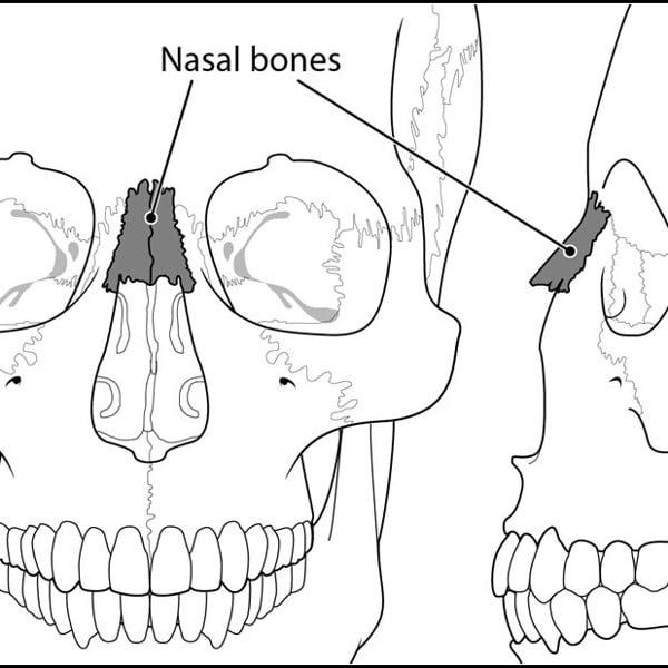 Chỉnh lệch xương mũi bằng tay