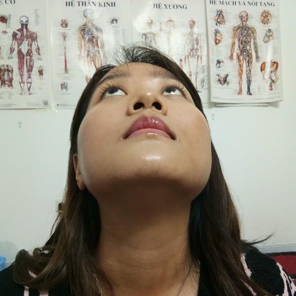 nắn chỉnh lệch mặt không phẫu thuật