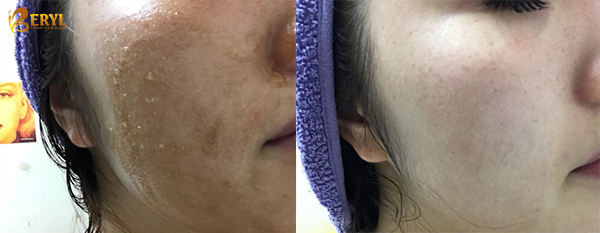 Tẩy Tế Bào Chết Đường Đen Mật Ong The Face Shop Smart Peeling Honey Black Sugar Scrub 120ml