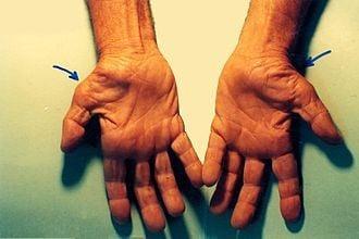 Hội chứng ống cổ tay gây teo bàn tay
