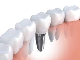 trồng răng implant cho người cao tuổi 3