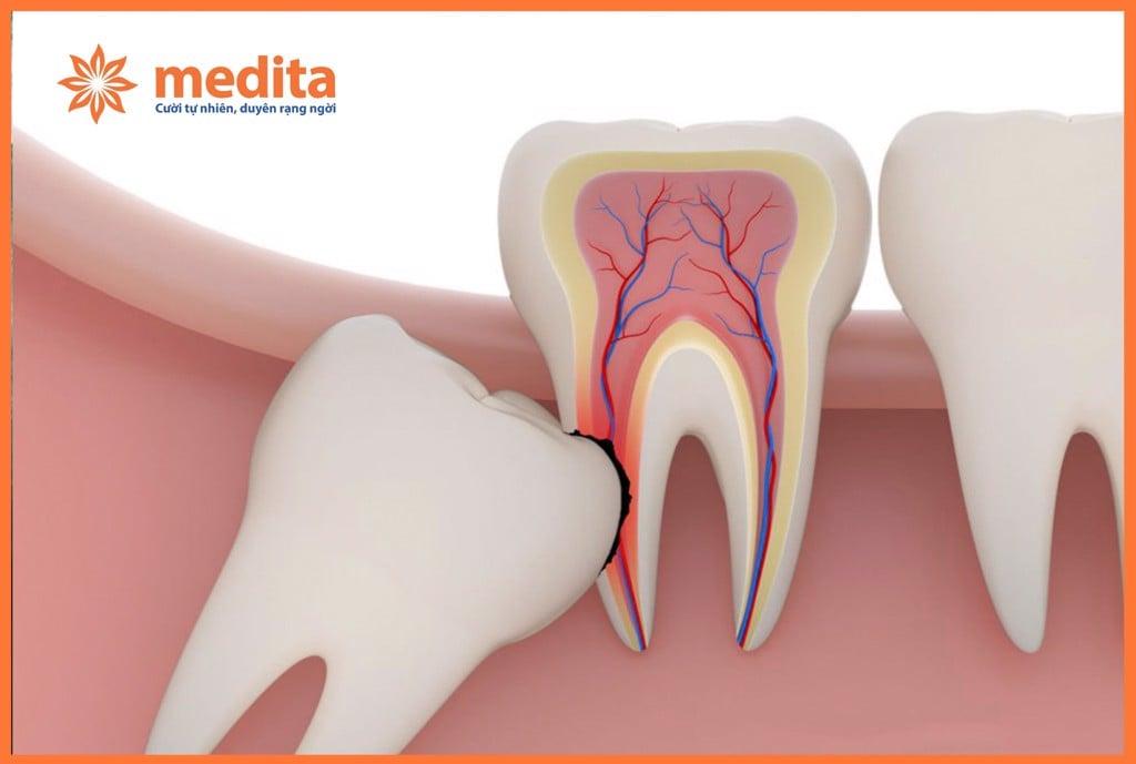 Nhổ răng số 8