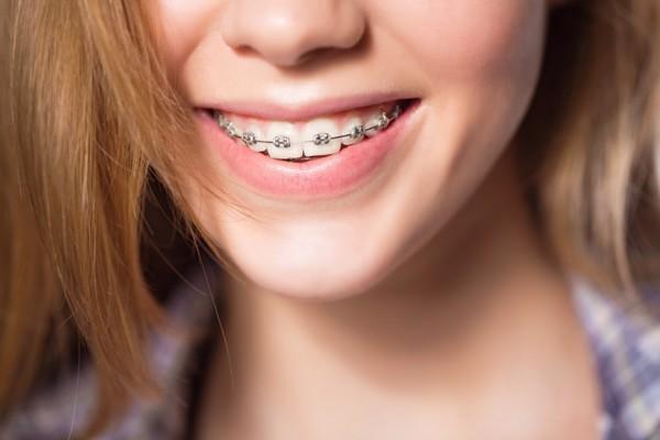 Niềng răng không nhổ răng giúp bảo tồn răng thật