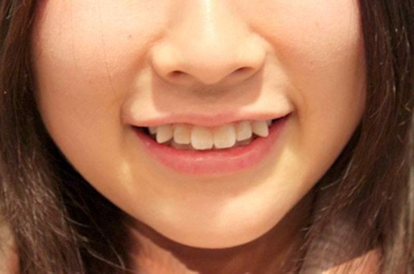 Răng khểnh