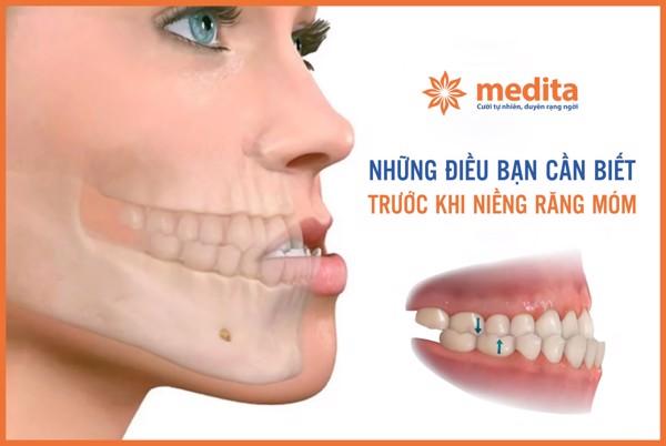Niềng răng_Niềng răng móm