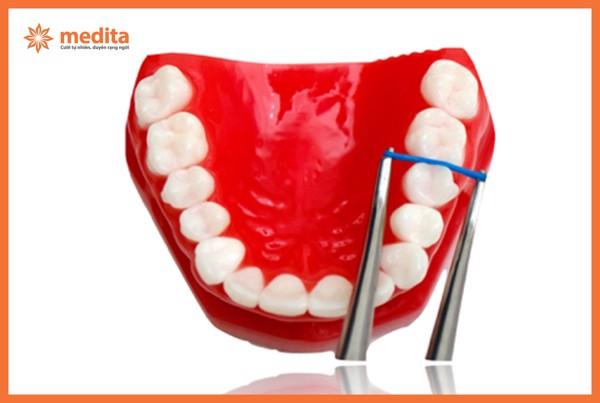 tách kẽ răng khi niềng răng