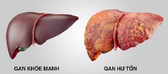 Han-Hepa gan hư tổn
