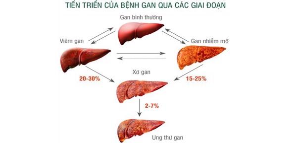 Han-Hepa bệnh gan