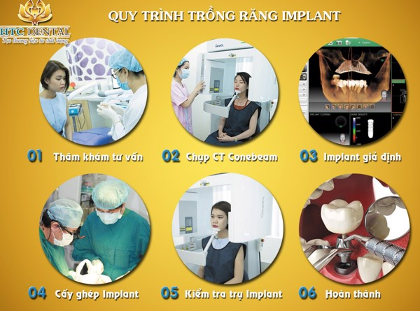 cay-ghep-implant-bao-nhieu-tien-3
