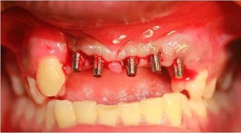 cay-ghep-rang-implant-co-gay-di-ung-2