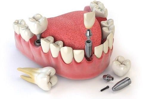 dieu-kien-can-de-cay-ghep-rang-implant-thanh-cong-2
