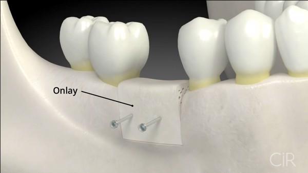 ghep-xuong-khi-cay-ghep-rang-implant-co-dau-khong-2