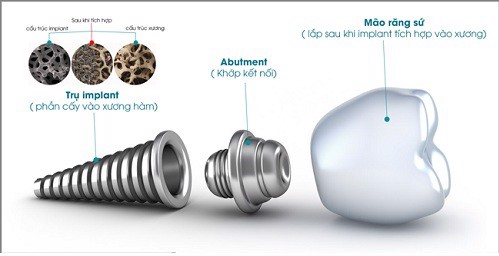 nen-lua-chon-loai-implant-nao-de-cay-ghep-rang-implant-4