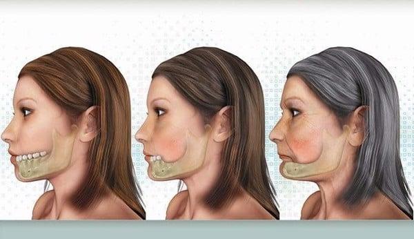 nhung-loi-ich-khi-cay-ghep-rang-implant-3
