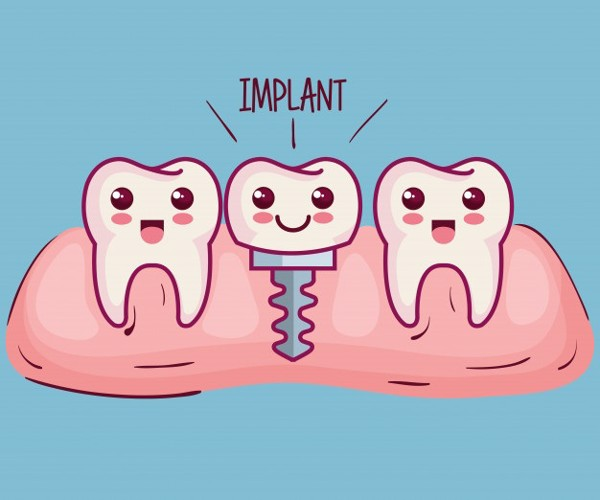 nhung-loi-ich-khi-cay-ghep-rang-implant-4