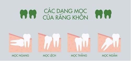 nhung-thong-tin-can-biet-ve-rang-khon-1