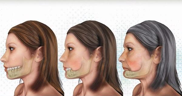 nhung-yeu-to-anh-huong-thanh-cong-khi-cay-ghep-implant-2