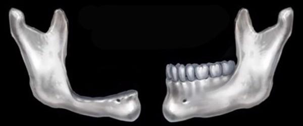 tieu-xuong-ham-co-cay-ghep-rang-implant-duoc-khong-3