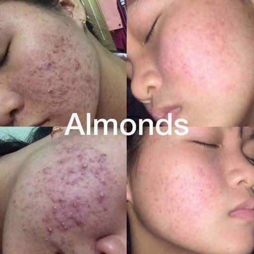 Nguyên nhân dẫn đến mụn mọc nhiều trên da mặt - TRỊ MỤN DỨT ĐIỂM