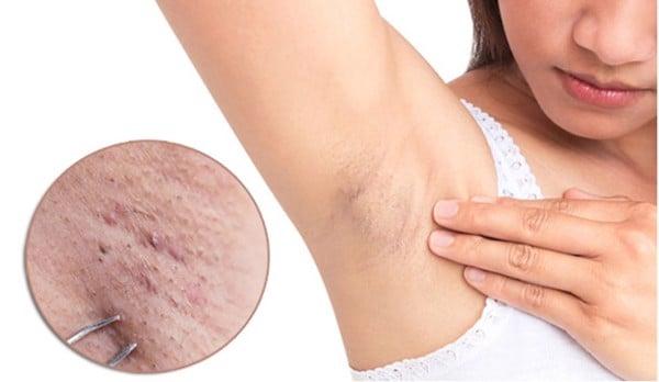 cách chữa viêm nang lông nách