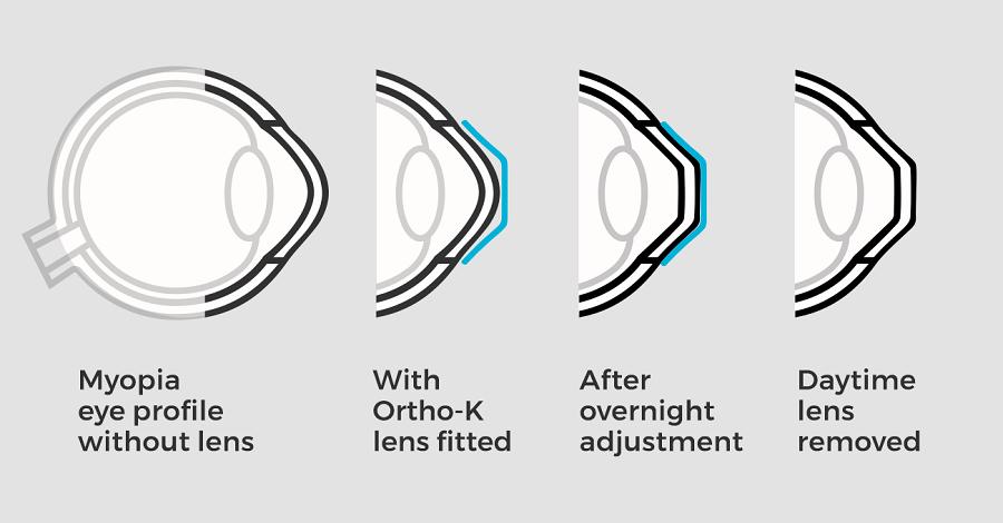 Chữa cận thị bằng kính áp tròng cứng có thực sự hiệu quả